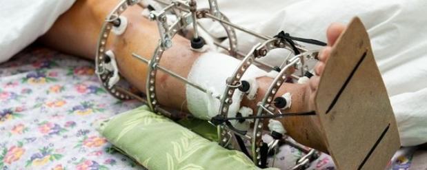 На Сборном пункте челнинский призывник сломал ногу, упав с мешком картошки